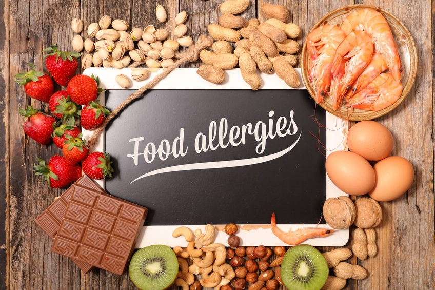 Food allergies at work